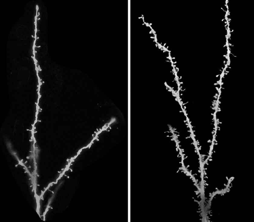 otizm-sinaptik
